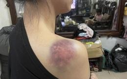 Công an truy tìm gã chồng đánh vợ cả đêm ở Yên Bái sau bữa ăn nhậu với bạn bè