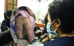 """Bé gái 12 tuổi ở Hà Nội tố bị mẹ đẻ bạo hành: """"Lúc bị đánh em van xin mẹ bỏ qua nhưng không được..."""""""