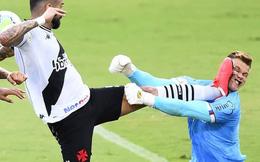 Hãi hùng thủ môn bị đạp đến nát cả mặt nhưng bác sĩ lại tuyên bố gây nhiều ngạc nhiên