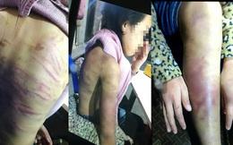 Người mẹ bạo hành bé gái 12 tuổi là đối tượng nghiện, đang bị khởi tố về tội tàng trữ ma túy