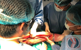Ca phẫu thuật thay xương đùi cho bệnh nhân nhỏ tuổi nhất Việt Nam, thứ 2 thế giới