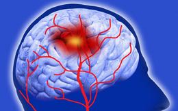 Đột quỵ rất nguy hiểm đến tính mạng: 6 giải pháp để ngăn chặn đột quỵ tấn công