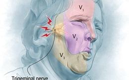 Đau dây thần kinh số V - Cơn đau dữ dội như 'chết đi sống lại'
