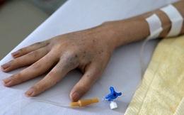 Hai vợ chồng bị ung thư phổi: Có dấu hiệu cảnh báo sớm ở tay từ lâu nhưng đã bỏ qua