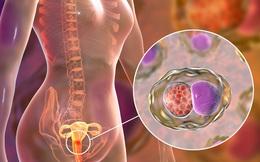 VĐV nổi tiếng qua đời chỉ 10 ngày sau khi phát hiện ung thư: Nên phòng bệnh thế nào?