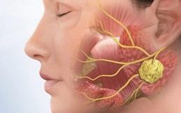 Phân biệt ung thư vòm họng với bệnh lý vùng mũi họng