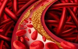 Làm gì để cân bằng mức cholesterol?