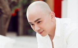 """""""Phù thủy trang điểm"""" Phan Minh Lộc qua đời ở tuổi 35: Căn bệnh có triệu chứng và nguyên nhân ra sao?"""