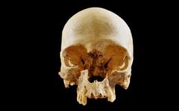 Bí ẩn chiếc hộp sọ cô đơn trong 'Hố địa ngục' ở Italia