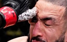 Võ sĩ bị đấm tím mắt, suýt mù khiến UFC phải đưa ra quyết định quan trọng
