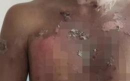 5 cậu bé 10 tuổi bị bạo hành dã man liên tục bằng nước sôi, hình ảnh vết thương và danh tính 2 kẻ ác gây căm phẫn tột độ