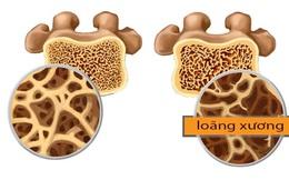 Nhận biết sớm bệnh loãng xương