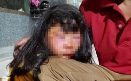 Nữ sinh lớp 6 bị kẻ lạ đánh đập dã man: Hắn dùng chân kẹp vào mặt rồi đánh, kéo lê bỏ xuống hố