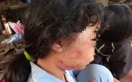 Lời kể của nữ sinh lớp 6 bị đánh dã man trong lô cao su