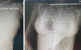 Một phụ nữ tử vong bất thường nghi liên quan đến tiêm filler nâng ngực
