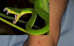 Vô tình bị rắn cắn, cần biết cách cấp cứu để tránh nguy hiểm: Bác sĩ mách 5 cách xử lý cần nhớ