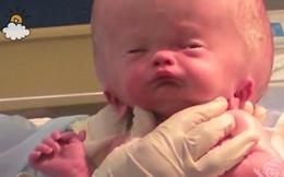 Bé trai sinh ra với căn bệnh não úng thủy, 6 tháng tuổi đã phải lên bàn mổ liên tục, sở hữu dung mạo hiện tại khiến ai cũng trầm trồ