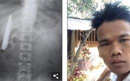 Hay đau ngực khi trời lạnh, đến lúc chụp X-quang mới thấy điều rợn người