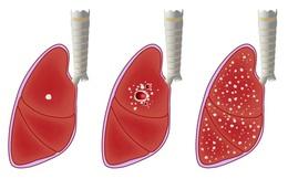Căn bệnh nguy hiểm ở phổi gây triệu chứng ho, sốt, đổ mồ hôi đêm: Ai là người có nguy cơ mắc?