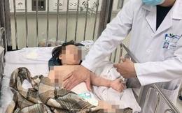 Bác sĩ BV Nhi Trung ương: Cách sơ cứu khi trẻ bị ngã, 3 điều tuyệt đối không được làm vì gây nguy hiểm cho trẻ