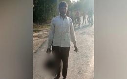 Phản đối chuyện tình cảm của con gái 17 tuổi, ông bố Ấn Độ gây ra tội ác kinh hoàng