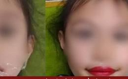 Xôn xao thẩm mỹ viện phun môi cho... bé gái 5 tuổi