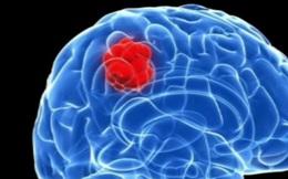 Israel tìm ra phương pháp mới ngăn chặn sự lây lan của tế bào ung thư não