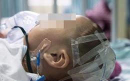 Bé 7 tháng tuổi ngã từ trên giường xuống đất nhưng không kêu không khóc, vài ngày sau đột ngột tử vong
