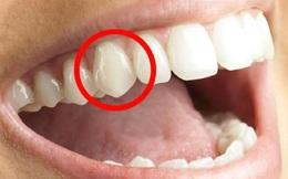 Tại sao răng nanh của con người lại nhọn?