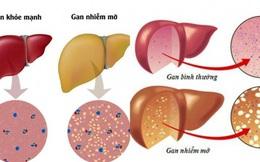 Cần làm gì khi bị gan nhiễm mỡ?