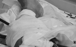 Giải cứu thanh niên bị 11 thanh sắt từ xe ba gác đâm xuyên chân