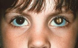 Chỉ từ dấu hiệu nhỏ ở mắt cảnh báo ung thư - dấu hiệu ai cũng nên nhớ