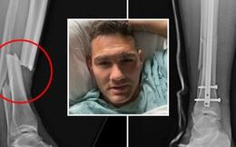 Xót xa trước hình ảnh chụp X-quang chấn thương gãy chân kinh hoàng của Chris Weidman
