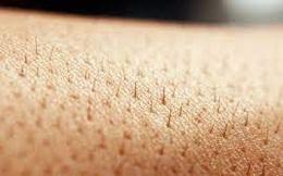 Điều gì sẽ xảy ra khi cơ thể không còn một cọng lông