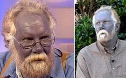 Lạ lùng dòng họ có da màu xanh như người ngoài hành tinh nổi tiếng thế giới