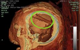 Phát hiện vật thể lạ 'cắt ngang' hộp sọ xác ướp, chuyên gia gắp ra qua đường mũi: Kết quả kinh ngạc!