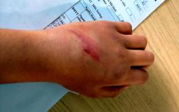 Bé trai 9 tuổi bị cha đánh đập dã man vì kết quả thi thấp