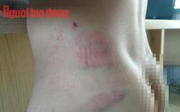 Cha bạo hành, đánh con tét đầu, ngăn không cho đưa vào bệnh viện