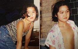Bé gái 10 tuổi đã mắc bệnh khiến ngoại hình như bà lão 80, 20 năm sau cơ thể và cuộc sống của cô thực sự đáng kinh ngạc