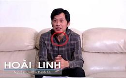 """NS Hoài Linh thông báo ung thư tuyến giáp, dân mạng phản ứng: """"Đi mổ mà không có sẹo?"""""""