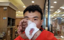 """SỐC: Thoát chết trong gang tấc ở marathon """"tử thần"""", VĐV Trung Quốc lập tức bị CĐM dọa giết"""