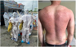 Cởi bỏ lớp áo bảo hộ, tấm lưng phồng rộp của cán bộ y tế ở Bắc Giang khiến tất cả xót xa