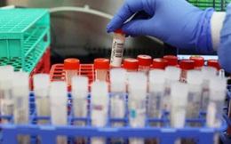 Việt Nam ghi nhận biến thể virus SARS-CoV-2 thứ 5: Chuyên gia nói gì về mức độ nguy hiểm?