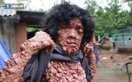 """Người đàn ông Quảng Bình mọc hàng ngàn """"trái cây"""" khắp cơ thể"""