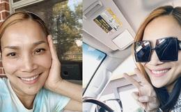 Cận cảnh gương mặt Hồng Ngọc sau 1 năm bị bỏng nặng