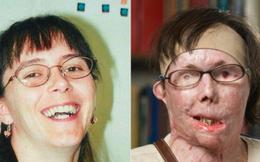 Bị người yêu tạt axit đến biến dạng và mù cả mắt, cô gái gây bất ngờ với ngoại hình hiện tại sau hàng chục cuộc phẫu thuật và cấy ghép mặt