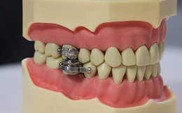 Thiết bị hỗ trợ giảm cân bằng cách 'khóa miệng' theo đúng nghĩa đen