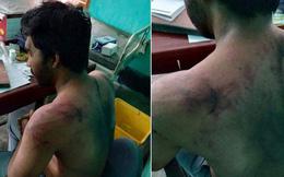 Ấn Độ: Bệnh nhân qua đời vì COVID-19, bác sĩ bị đánh đập dã man