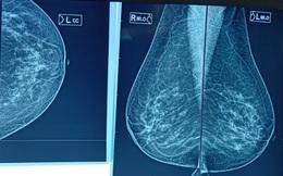 Phụ nữ có bộ ngực lớn, mô vú dày có thể đối mặt với nguy cơ ung thư vú