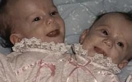 Bị chẩn đoán khó sống sót, cặp chị em sinh đôi dính liền chỉ có 2 chân khiến thế giới kinh ngạc với cuộc sống và diện mạo sau hơn 30 năm